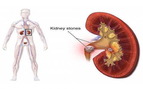 How To Eliminate Kidney Stones and Reduce the Risk of Getting One!